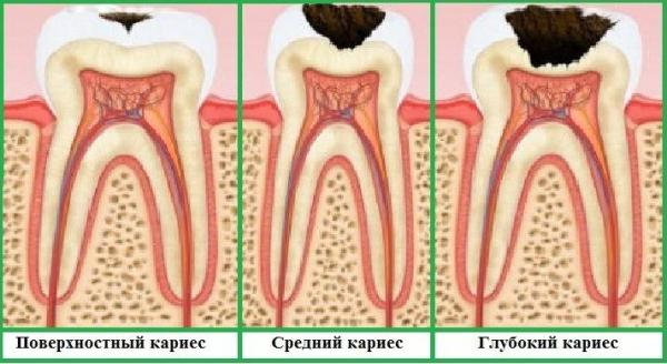 Этапы разрушения зубов