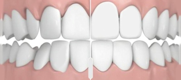 Какие разновидности правильного прикуса зубов бывают у человека