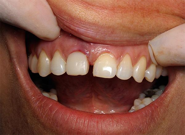 Возможность отторжения импланта зуба и срок его службы