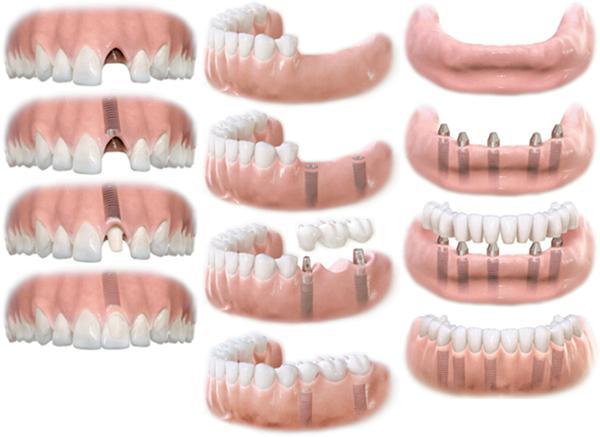 Больно ли устанавливать импланты зубов и сколько они служат
