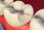 Причины сколов зубов