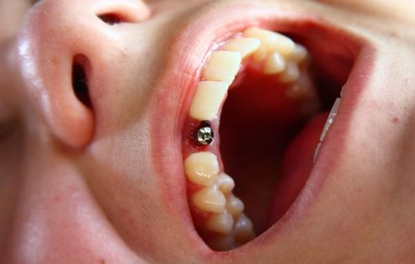 Отзывы стоматологов о лучших имплантах зубов