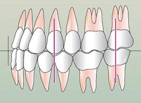 Правильная окклюзия и прикус зубов