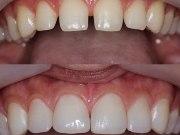 Фото передних зубов до и после наращивания