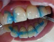Метод шинирования подвижных зубов