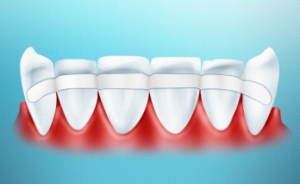 Обездвиживание подвижных зубов стекловолокном