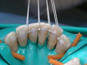Одна из методик применяемая для уменьшения подвижности зубов