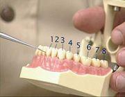 Американская система нумерации зубов