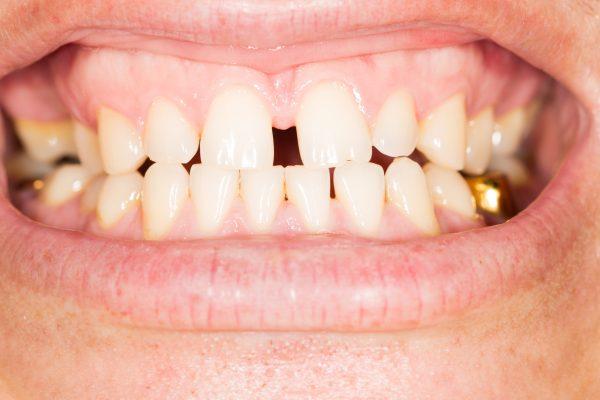 Проблема решаемая врачом ортодонтом