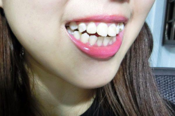 Удлинение зубного ряда