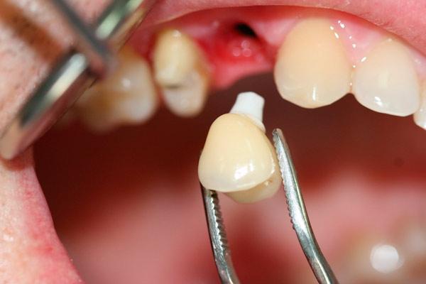 Отзывы тех, кто ставил импланты передних зубов