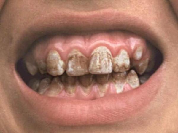 Содержание фтора в зубной пасте приводит к разрушению эмали