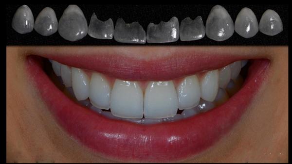 Оптимальный метод для выравнивания зубов