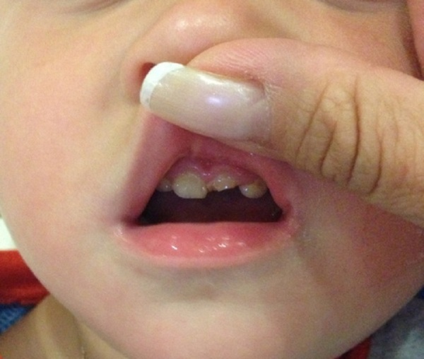 Что делать если откололся кусочек зуба