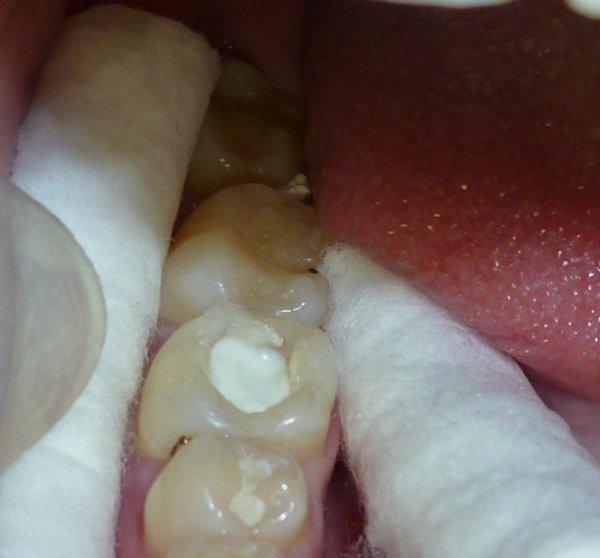 Фото пролеченного зуба