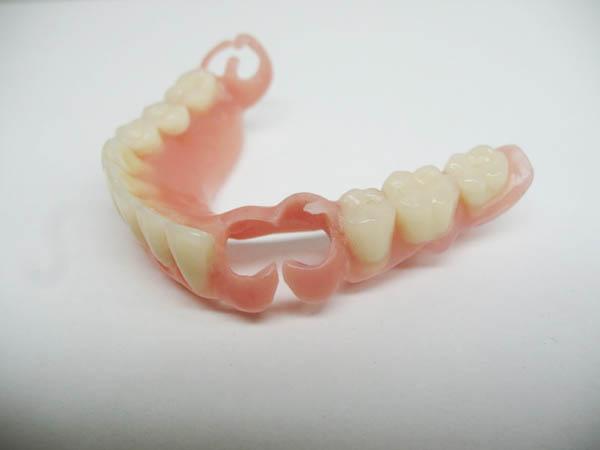 Какие зубы лучше вставить цены