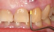 Воспаление челюсти в области надкостницы