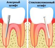 Применение штифтов для наращивания зубов