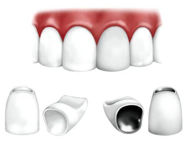 Сколько стоит наращивание переднего зуба