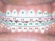 Все нумерации зубов в стоматологии