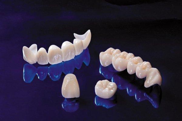 Откололся кусочек коренного зуба что делать