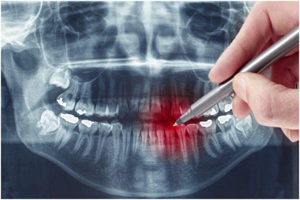 На рентгеновском снимке есть возможность оценить диагноз