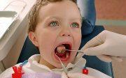 Проведение подрезания уздечки языка