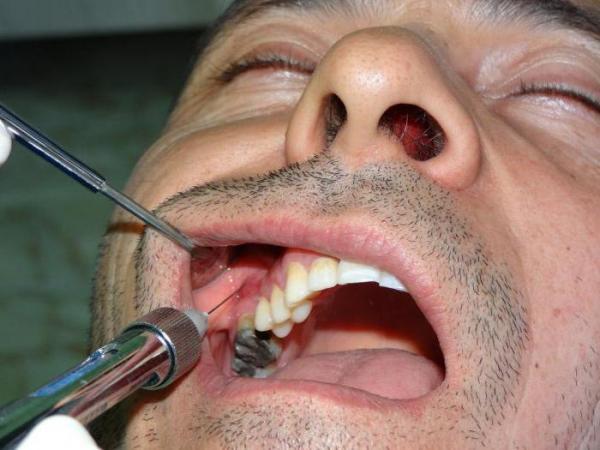 Проведение анестезии туберальным методом