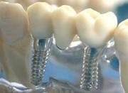 Какие противопоказания к установке имплантов