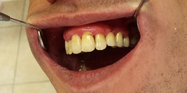 В процедуру входит осмотр полости рта