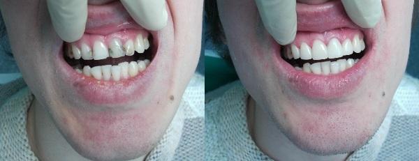 Снимок пациента до после реставрации
