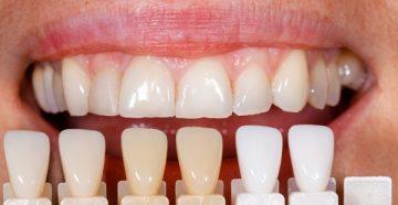 Нарастить передний зуб – сколько стоят современные методики