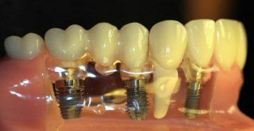 Рейтинг имплантов зубов по сроку службы