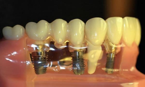 Имплантация зубов псков отзывы и цены