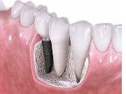 Качество и срок службы имплантов зубов