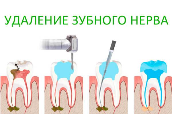 Последовательность проведения процедуры в стоматологии