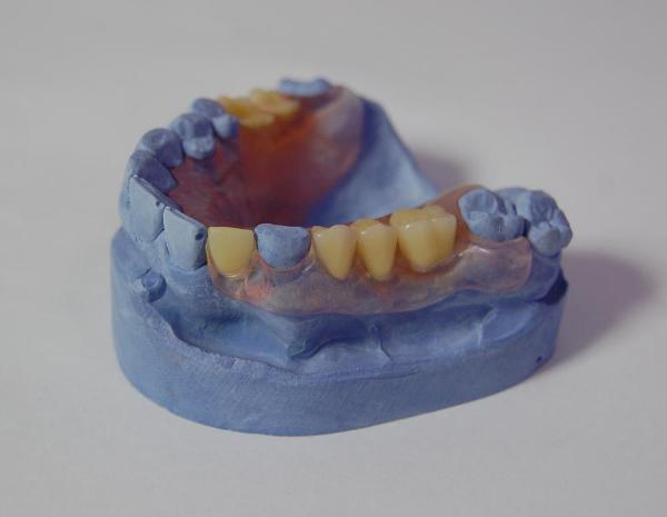 Зубные протезы акри фри фото
