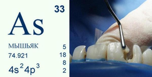 Антидот мышьяка в стоматологии