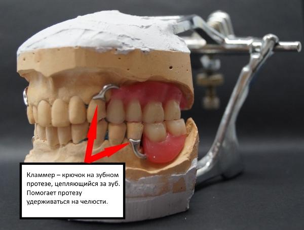 Бюгельный протез на верхнюю челюсть видео