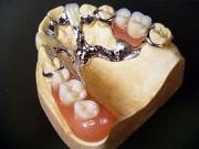 Особенности бюгельного протеза на верхнюю челюсть