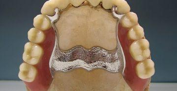 Процедура изготовления бюгеьного протеза на верхнюю челюсть и применяемый материал