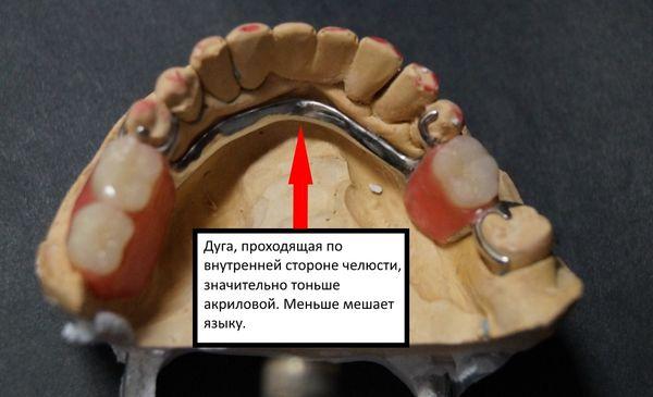 Дуга по внутренней стороне челюсти обеспечивает быстрое привыкание