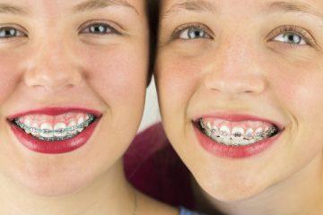 Фото до и после использования брекетов для выравнивания зубов и коррекции прикуса