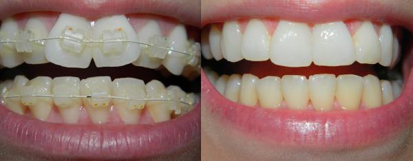 Фото до и после ношения