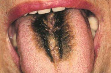Факторы появления и лечение черного волосатого языка