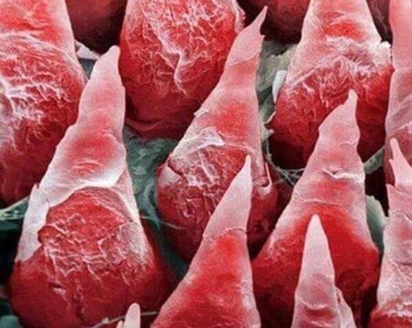 Черный волосатый язык диф. диагностика глоссофитии