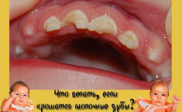 Крошится передний зуб что делать