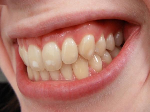 Патогенез флюороза зубов