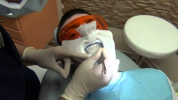 Можно ли отбеливать зубы при флюорозе