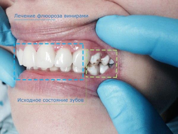 Эндемический флюороз зубов картинки